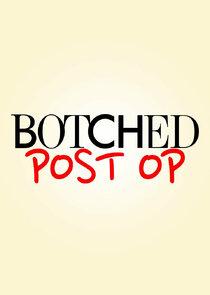 Botched: Post Op-19100
